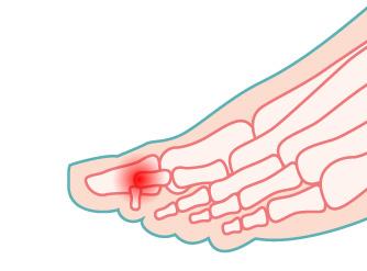 illustrazione del dito a maglio