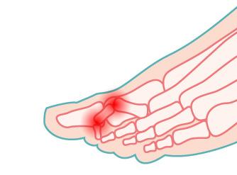 illustrazione del dito in griffe