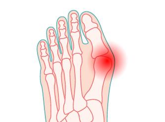 illustrazione di piede con alluce valgo