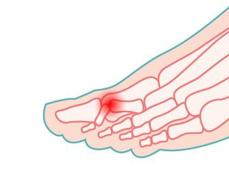 illustrazione del dito a martello