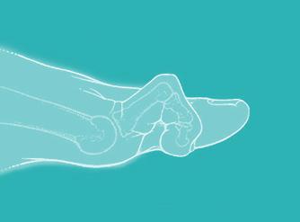 illustrazione patologia dita a martello