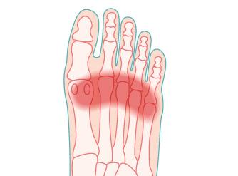 illustrazione della patologia metatarsalgia