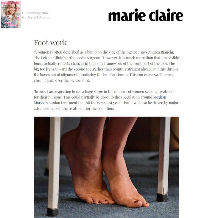 Articolo di Marie Claire su cura alluce valgo a Londra